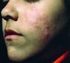 Lupus eritematoso crónico discoide en la infancia.  Presentación de ...