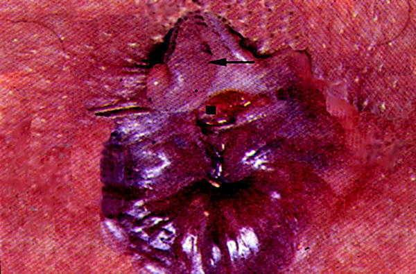 correlación entre fisuras anales e inflamación de la próstata