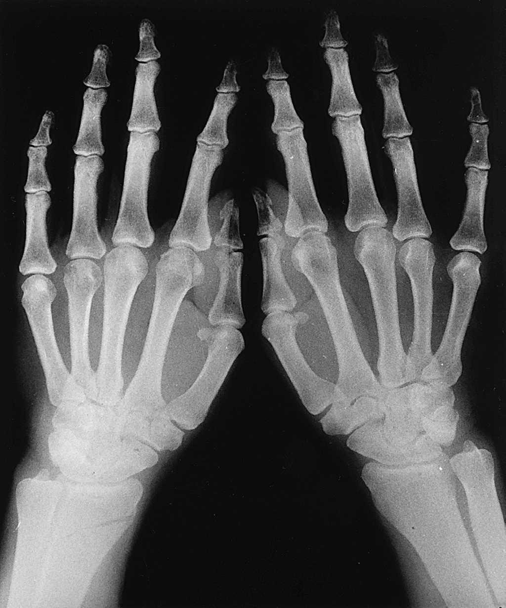 artritis reumatoide calidad 1