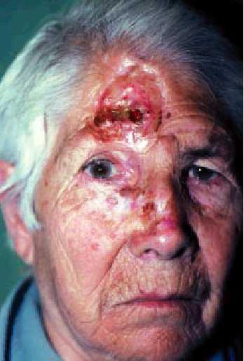 Los Tumores Cutneos Faciales | Medicina Integral