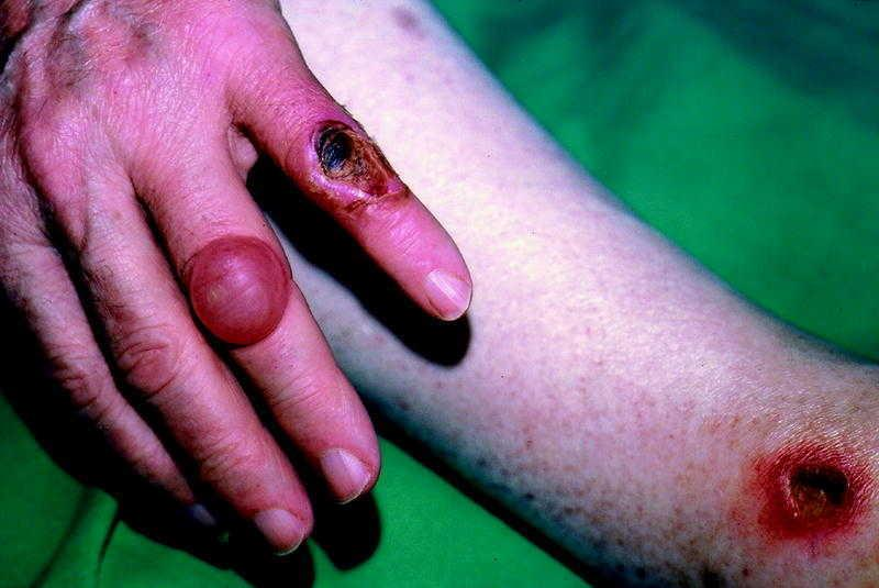 síntomas de diabetes en la piel con picazón