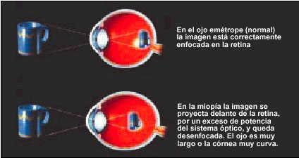 e6a7017ef7 En general, puede afirmarse que en la miopía simple no son evidentes  alteraciones patológicas, mientras que en la miopía patológica aparecen  cambios ...