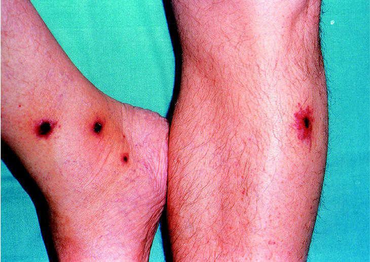 vasculitis leucocitaria cutanea