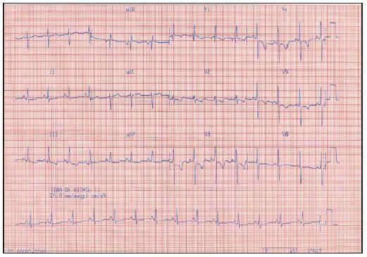 Pulmonary Hypertension Associated with Human Immunodeficiency Virus
