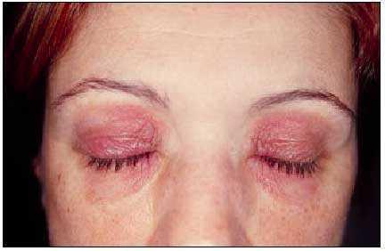 Dermatitis de contacto  Alergia e irritación | Farmacia