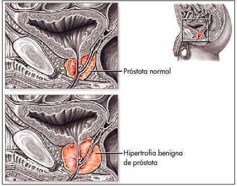 prostata normal ultrasonido