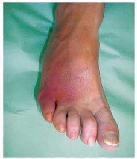 dolor en la diabetes del pie