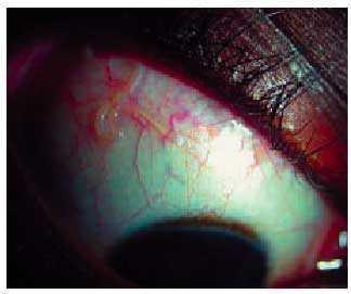 ascaris lumbricoides ocular