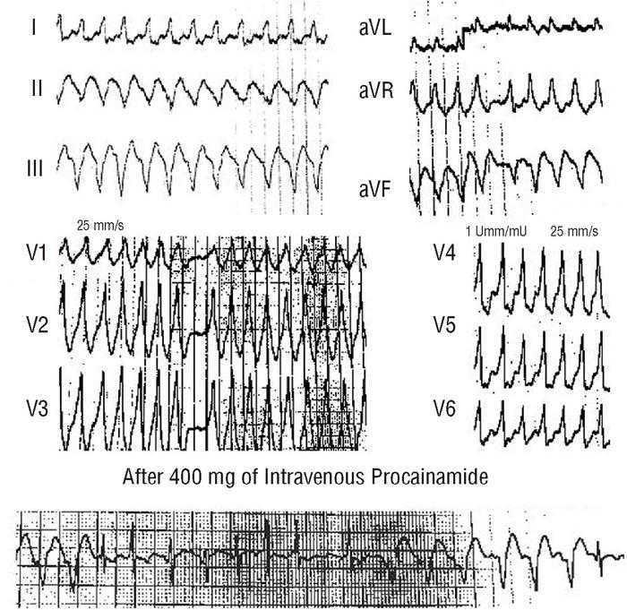 Treatment of Patients With Ventricular Preexcitation