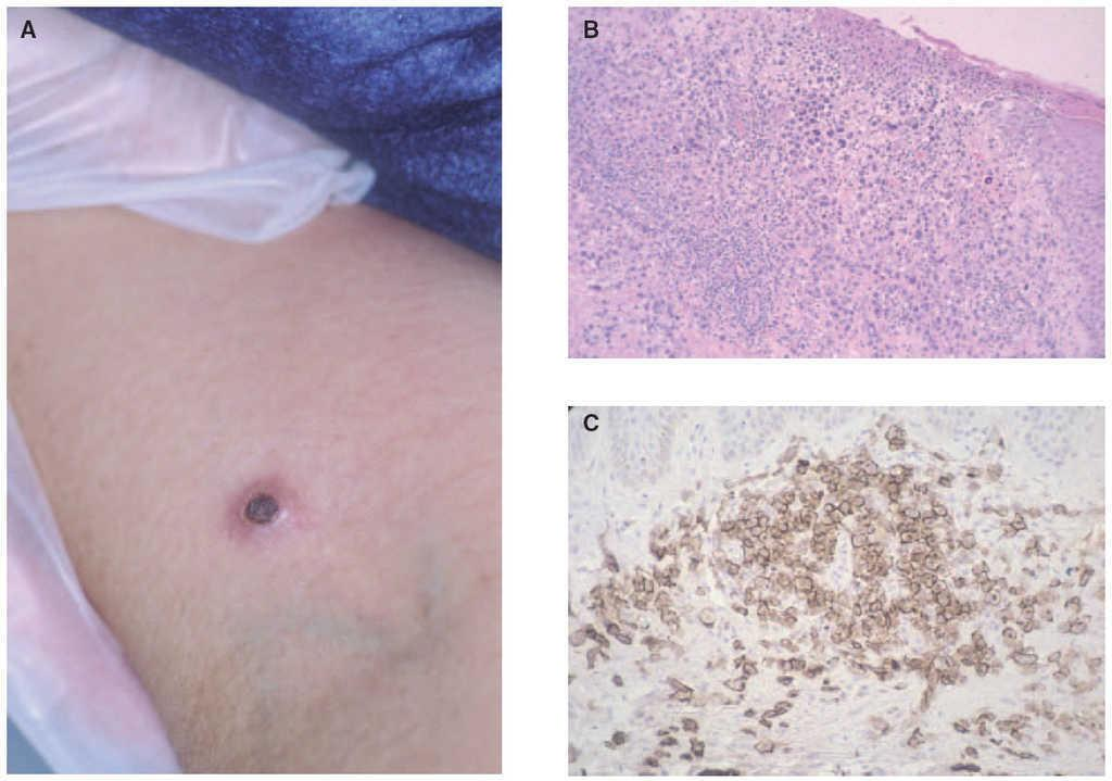 linfoma cutáneo de células T prevalencia de diabetes