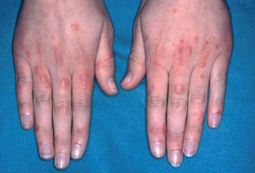 Manifestaciones cutáneas de las miopatías inflamatorias idiopáticas | Piel.  Formación continuada en dermatología
