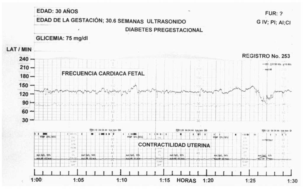 141 frecuencia cardíaca es normal