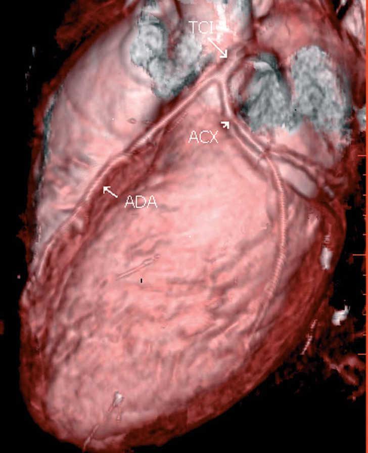 Angiografía coronaria mediante tomografía computarizada multicorte ...