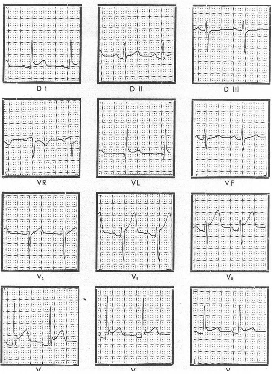 Diagnosis and Management of Acute Pericardial Syndromes | Revista