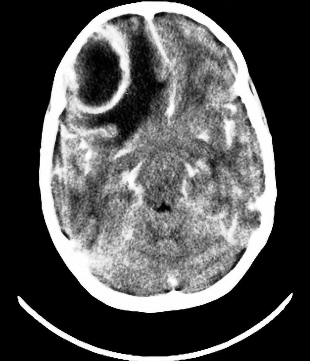 Coronavirus del dolor de cabeza del lóbulo frontal