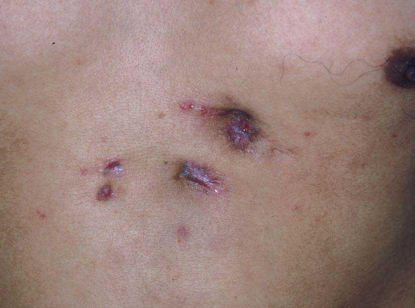ver fotos de ulceras en la piel