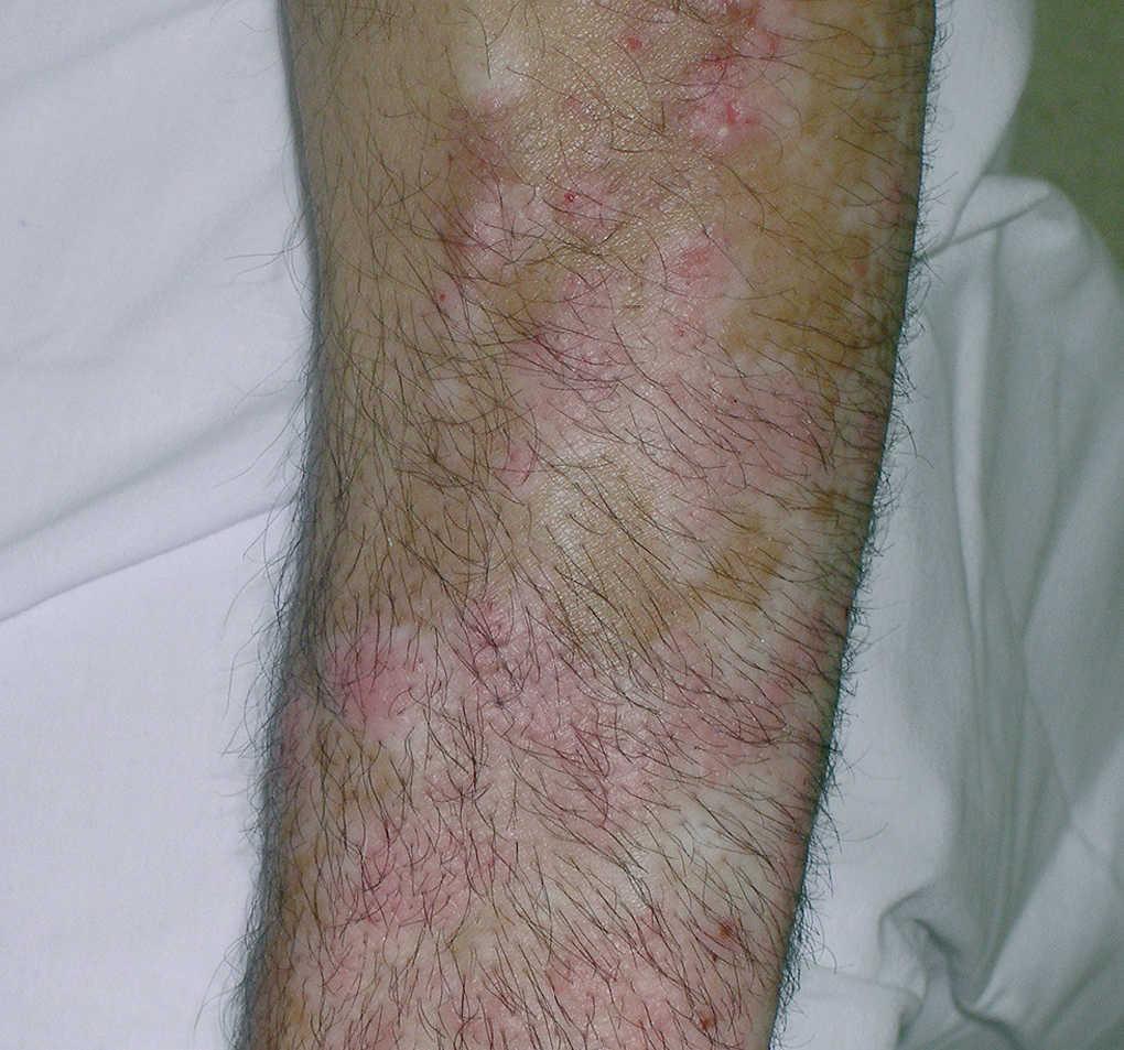 psoriasis vulgar pdf
