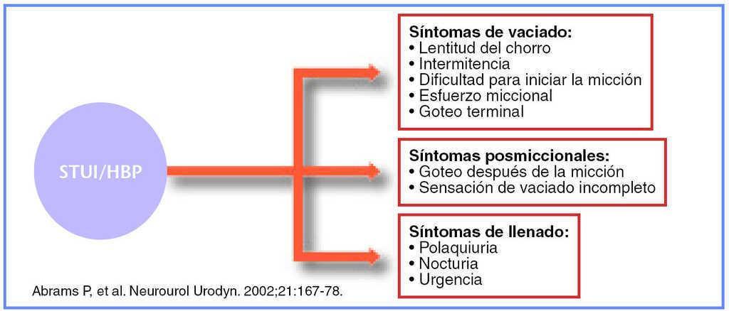 síntomas urinarios