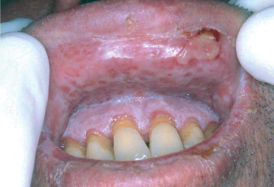 diabetes y úlceras de lengua