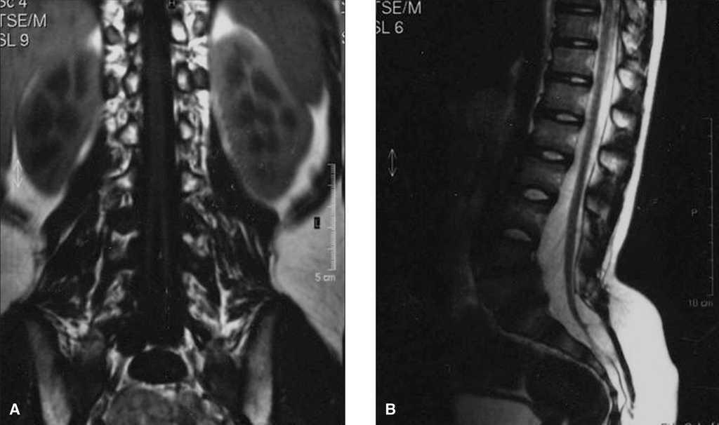 Diastematomielia: una forma de disrafia espinal | Anales de Pediatría