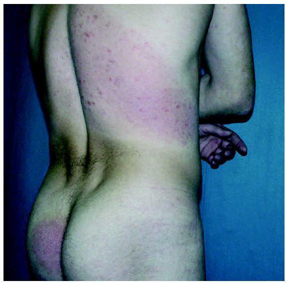 que es la enfermedad micosis fungoide