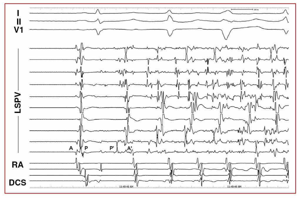 Inducibility of Atrial Arrhythmias After Adenosine and
