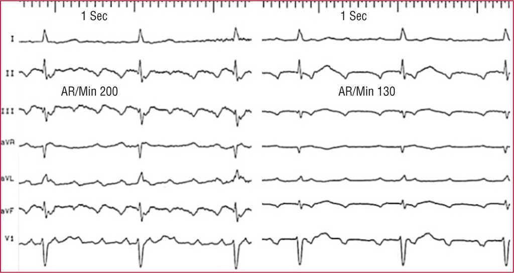 心電図 フラッター フラッターとはどのような心電図波形か?|ハテナース