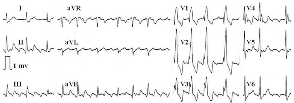 Atrial Flutter: an Update | Revista Española de Cardiología (English