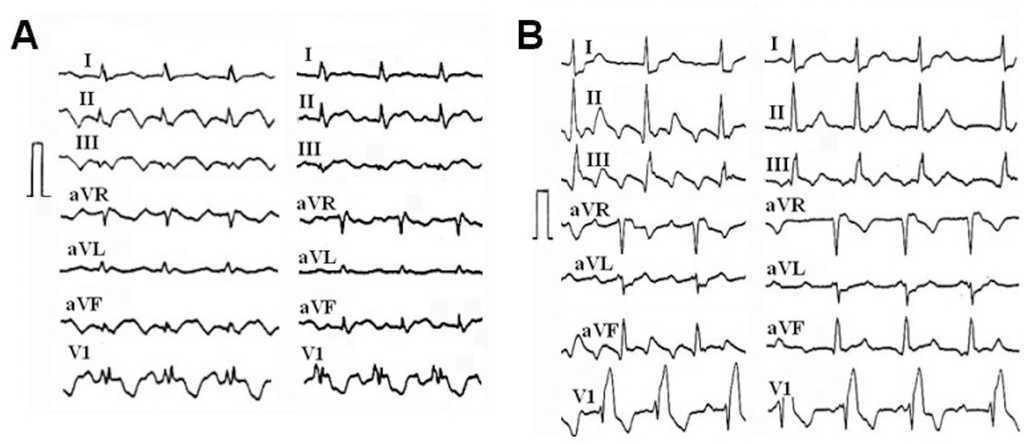Atrial Flutter: an Update | Revista Española de Cardiología