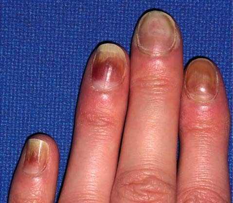 uñas amarillentas cura de la diabetes