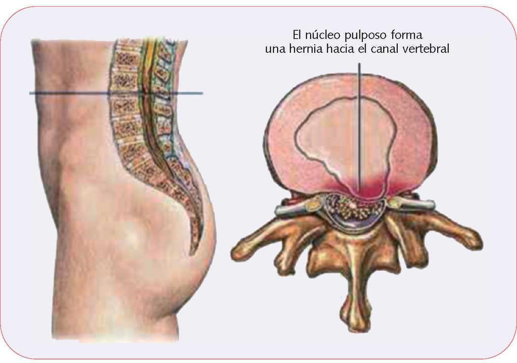 Dolor de espalda | Farmacia Profesional