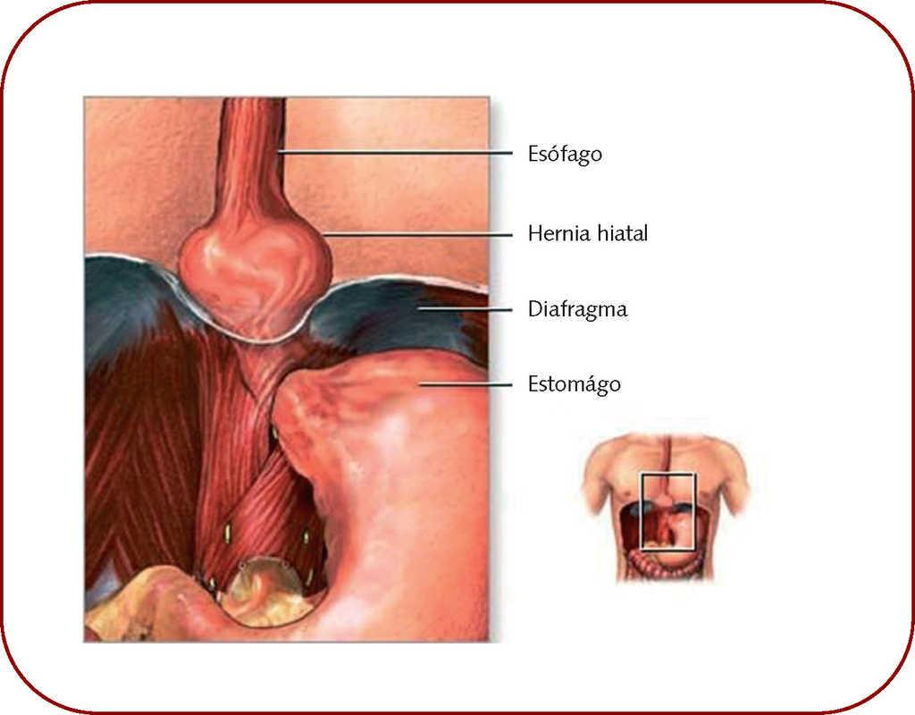 hernia de hiato con reflujo gastroesofágico