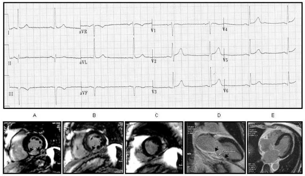 New Heart Wall Terminology and New Electrocardiographic