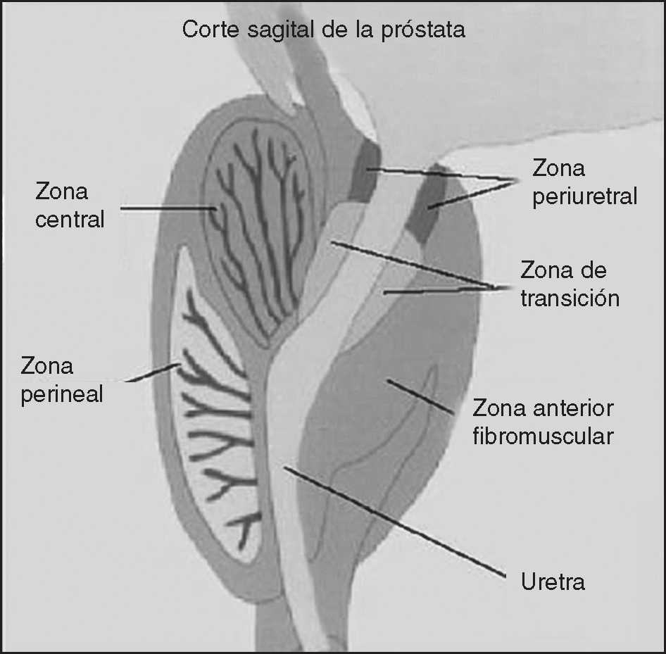 carcinoma de células de transición de la glándula prostática