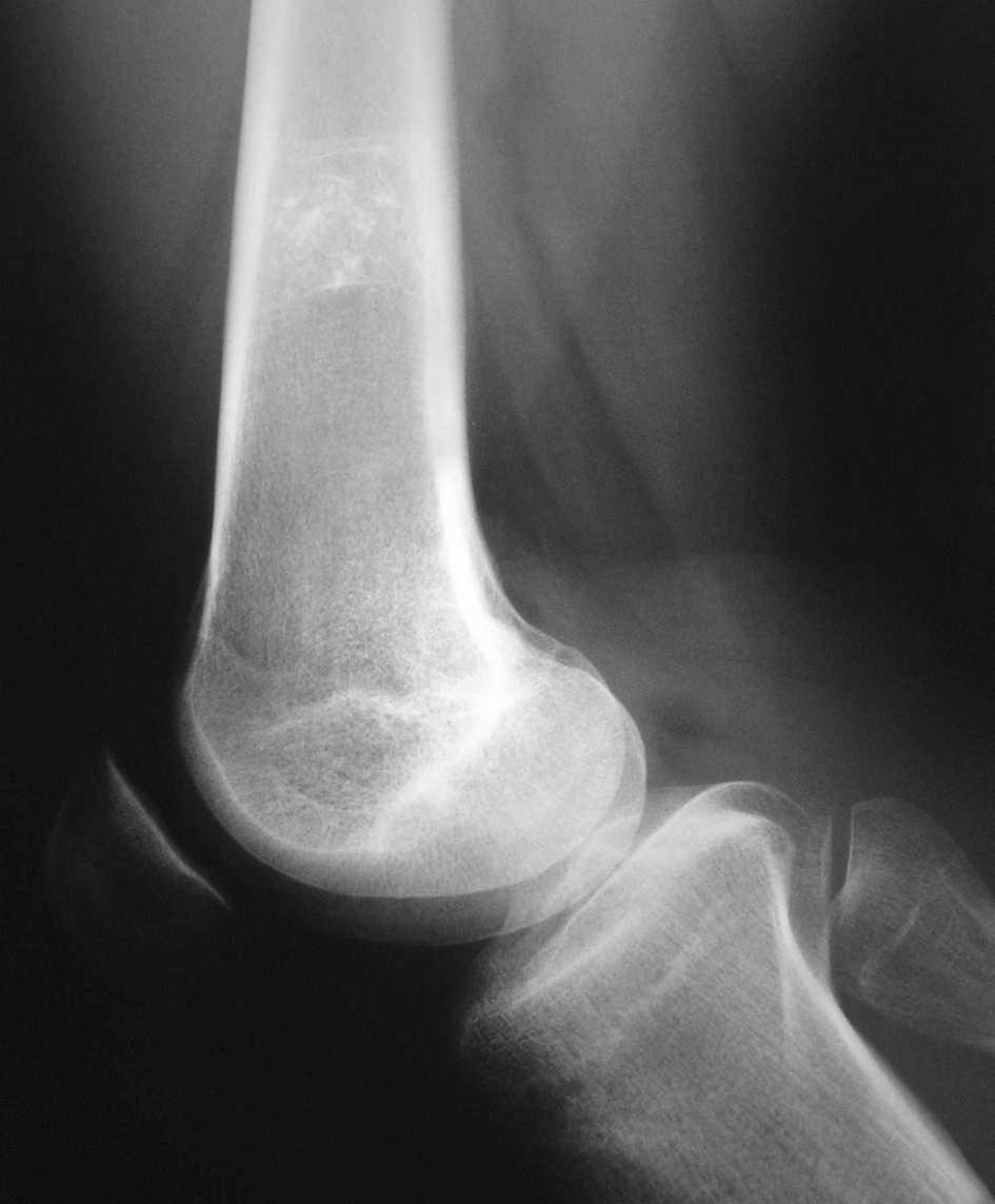 simptome de osteocondroză la șold