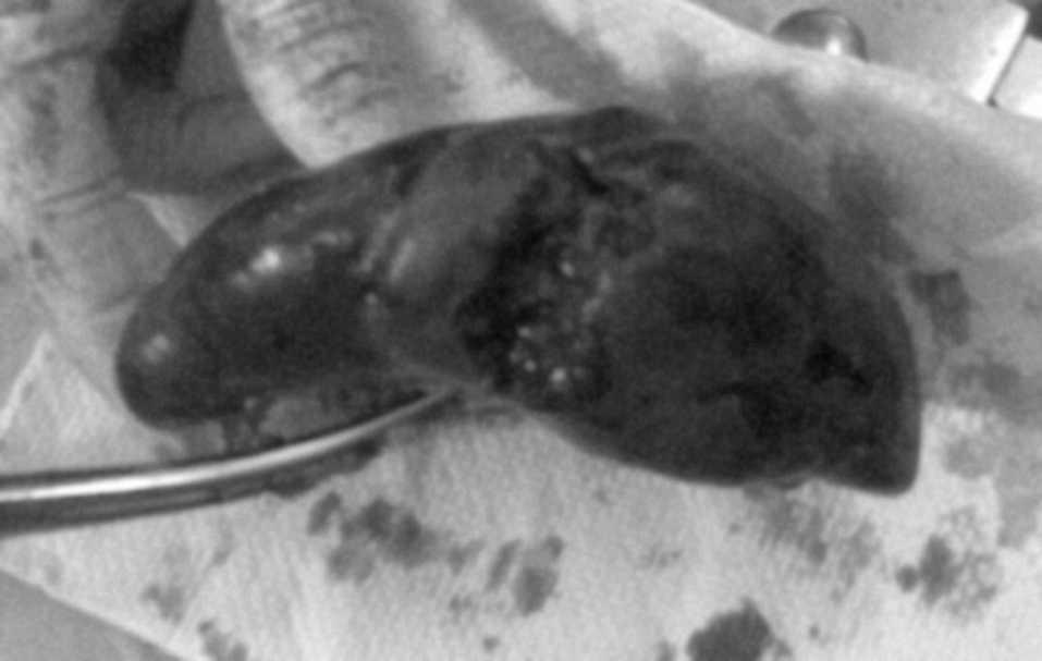 Rotura esplénica posparto asociada a preeclampsia | Cirugía Española