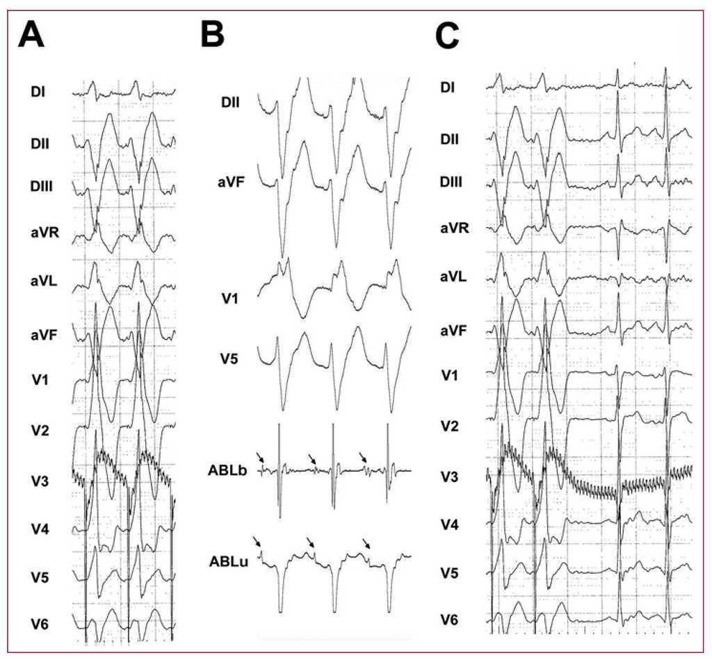 Ablation of Idiopathic Left Ventricular Tachycardia Using