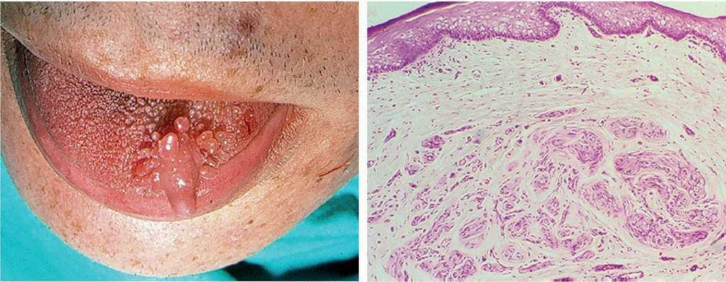 síntomas de diabetes en fibroma de la cavidad oral