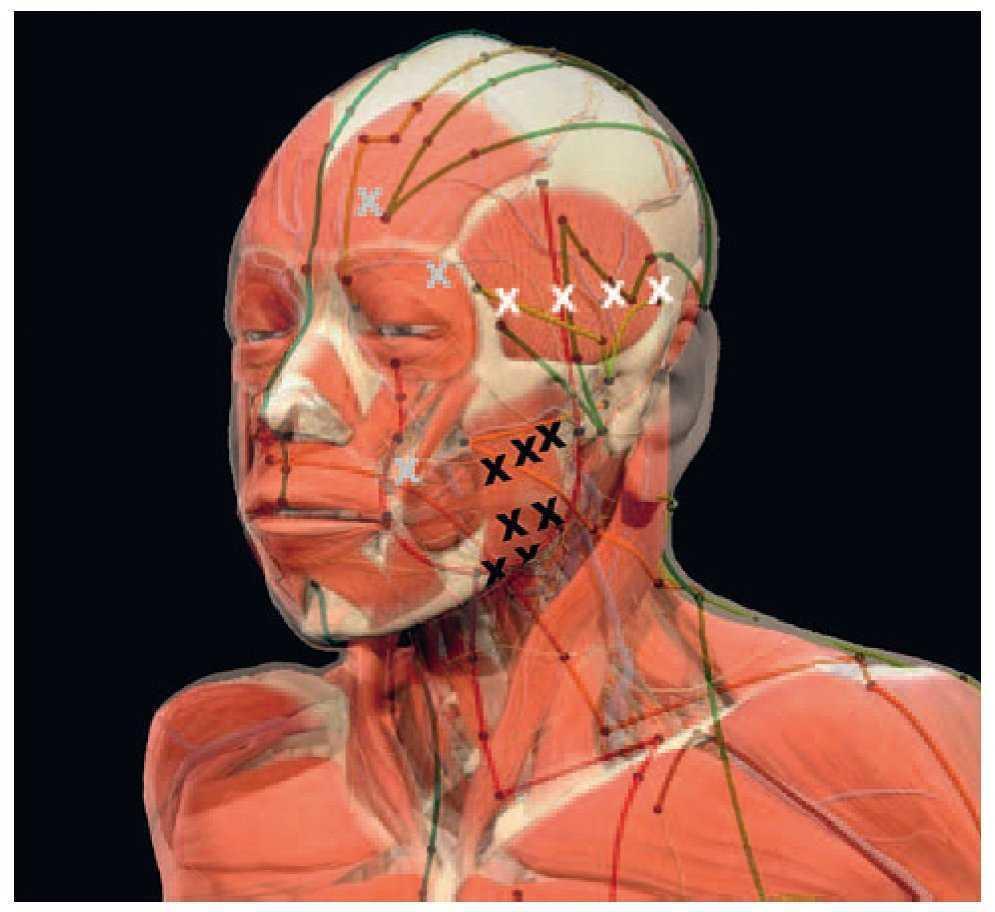 Puntos gatillo y puntos de acupuntura clásica. Primera parte ...