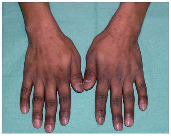 descamación de la piel después de la hinchazón