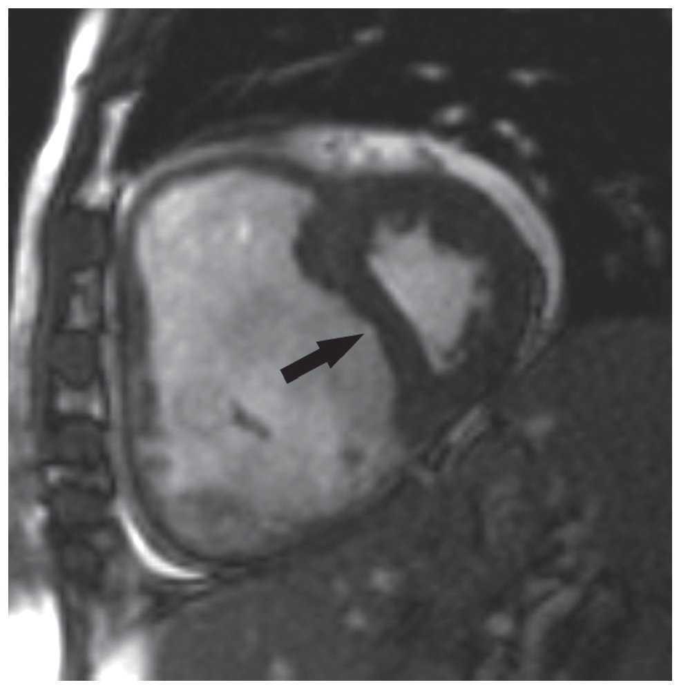 Técnicas de imagen en la evaluación del corazón derecho y..
