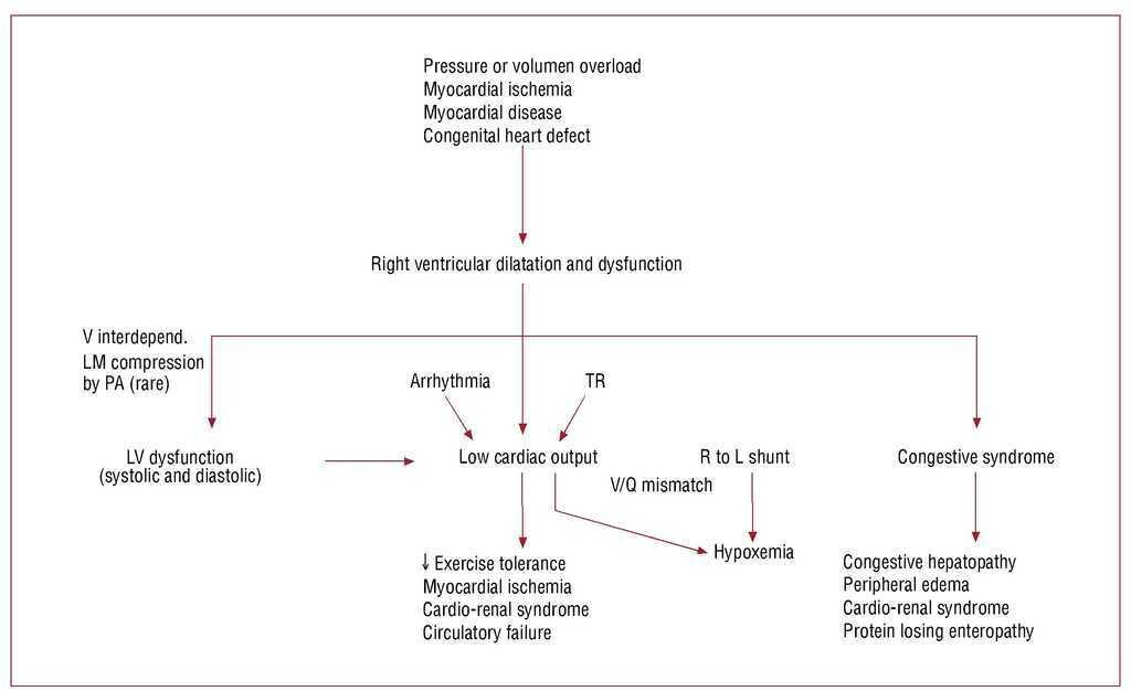 Evidence-Based Management of Right Heart Failure: a