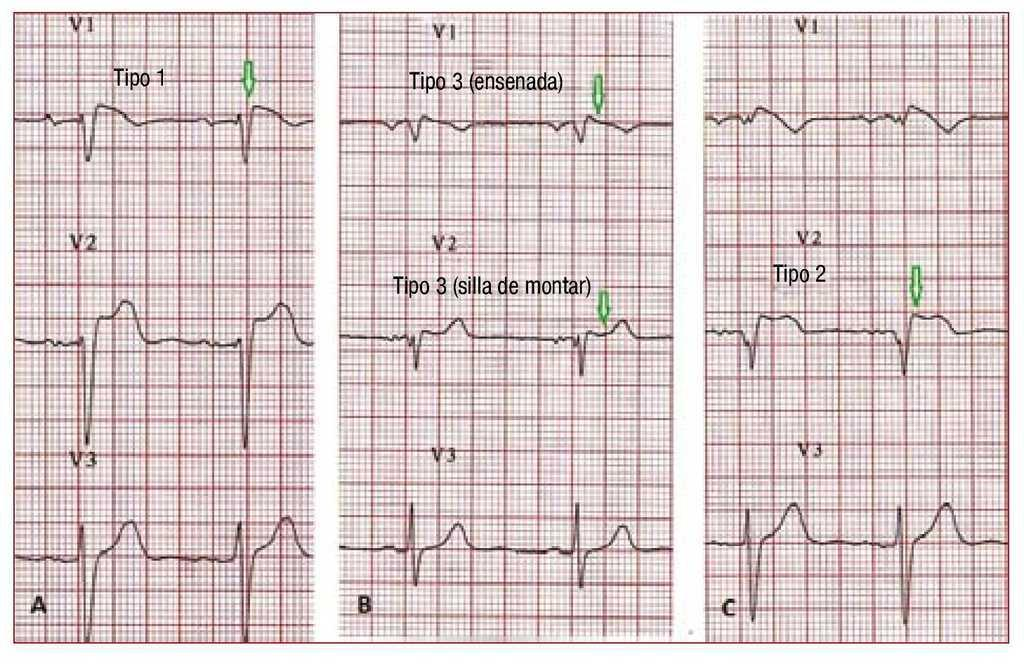 Arrhythmia and Right Heart Disease: From Genetic Basis to
