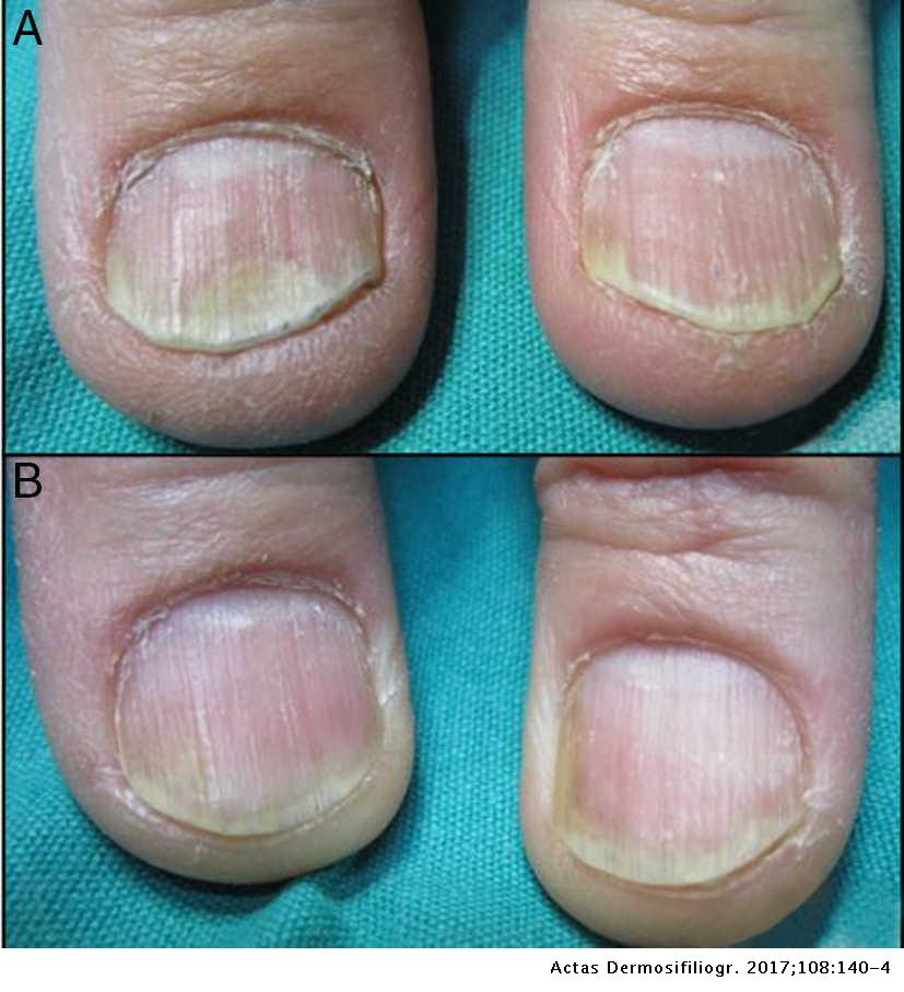 pictures of nail psoriasis images