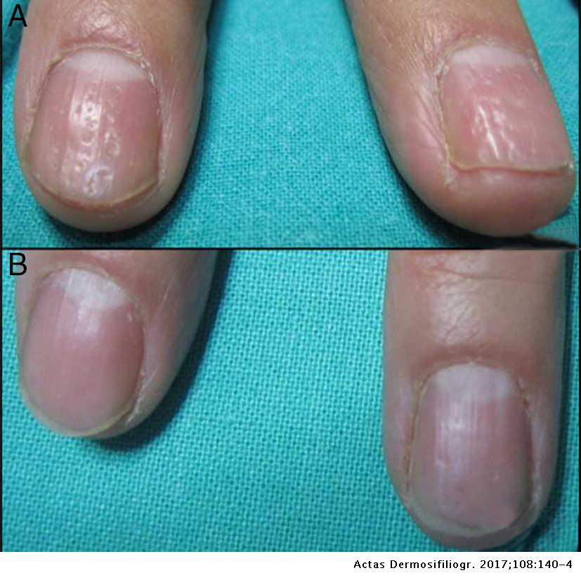 nail psoriasis pictures