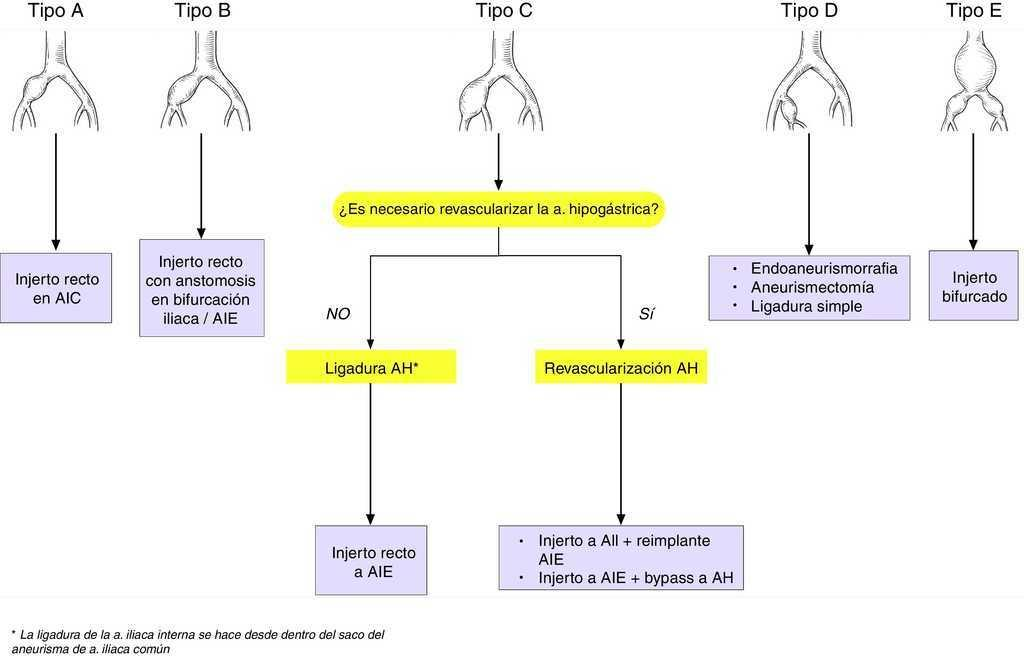 Aneurismas de arteria iliaca: Actualización y algoritmos de decisión ...