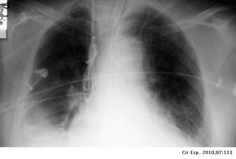 Hipertensión portal fisiopatologia