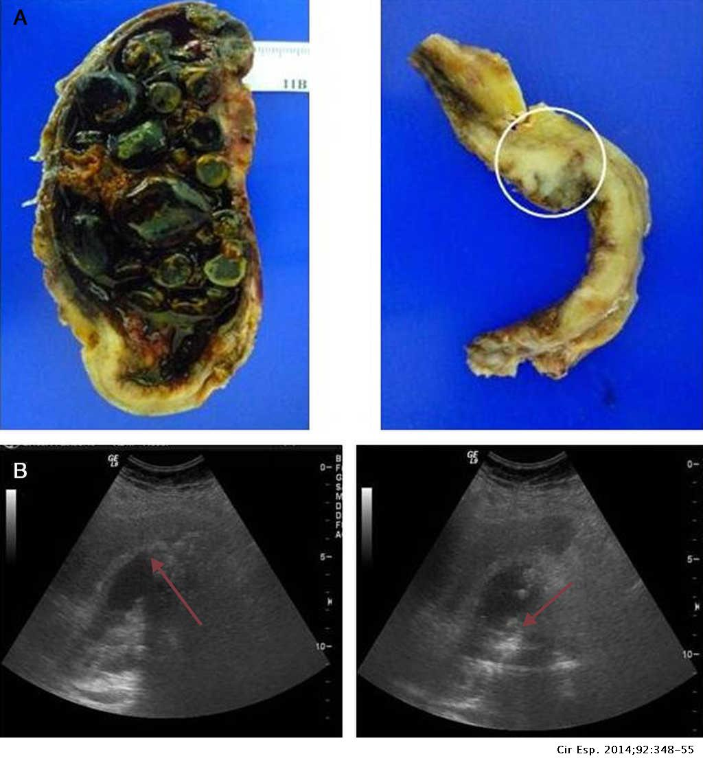 cancer vesicula biliar