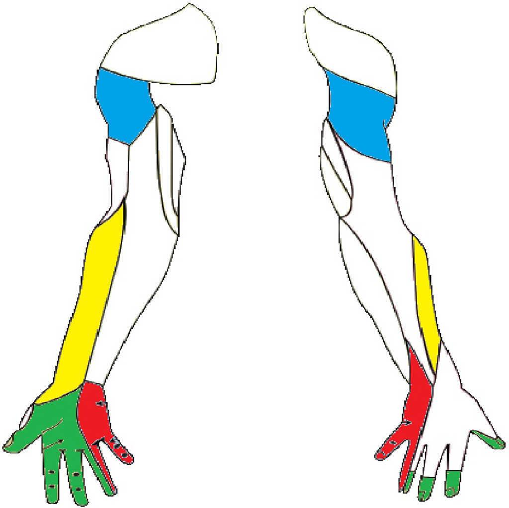 Lesión intraoperatoria de nervio periférico en cirugía colorrectal ...