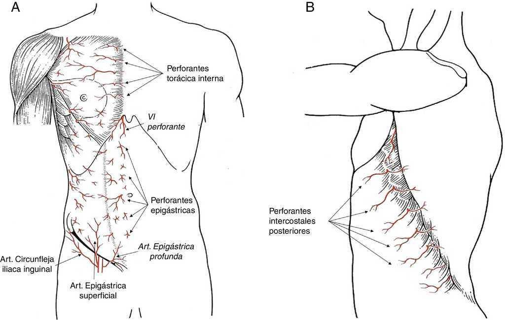 Colgajos por rotación en la cirugía oncológica de la mama ...